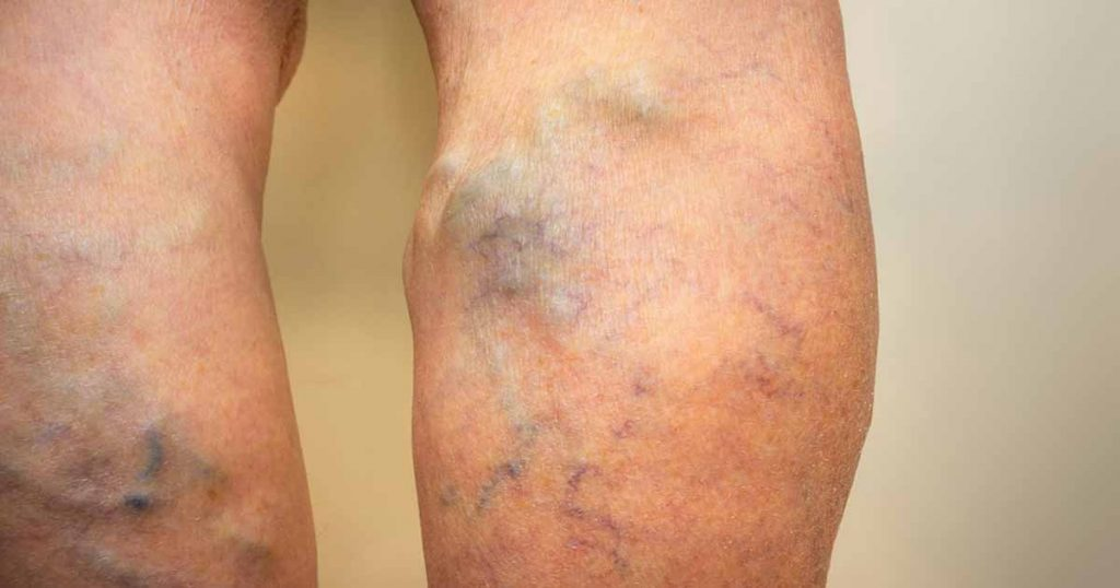 ciorapi elastici dupa functionare varicoza unguent de la picior de varicoză